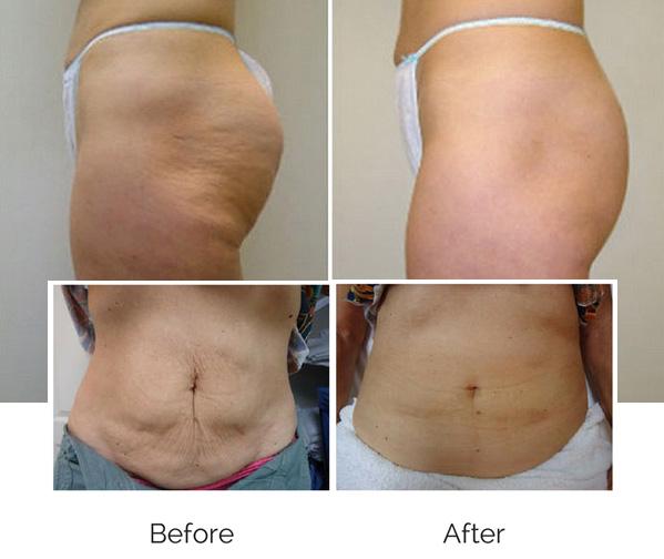 VelaShape Body Contouring - Reduce Cellulite