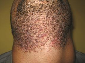 Men's Laser Hair Removal